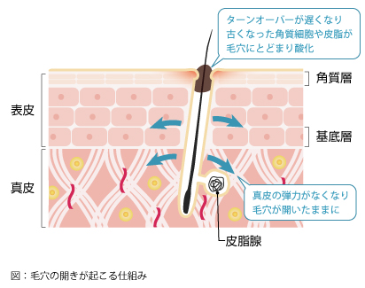 毛穴の開きが起こる仕組み